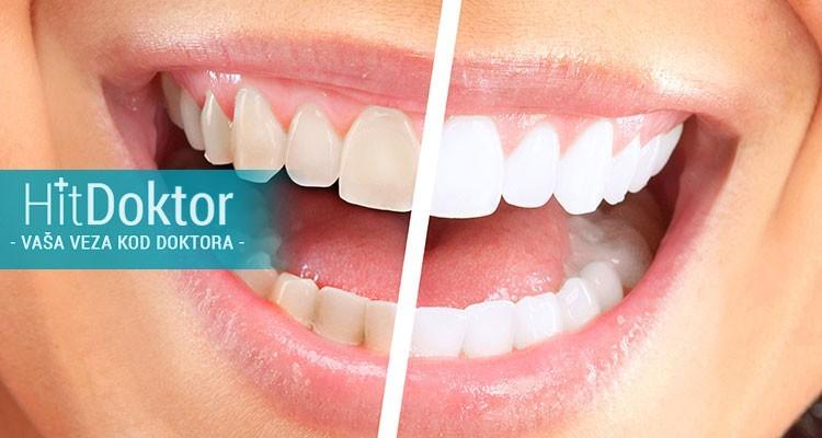 200 rsd vaucer za 3 ili 6 tretmana laserskog beljenja zuba u trajanju od 20 minuta
