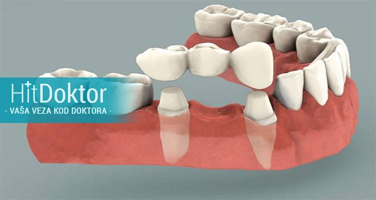 46% popusta za izradu metalokeramičke krunice + gratis čišćenje zubnog kamenca i poliranje svih zuba po hit ceni od 5990