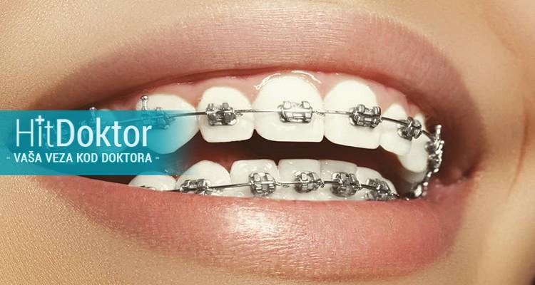 Kompletan specijalistički pregled ortodonta, uzimanje otiska i analiza modela! Po HITdoktor ceni 1500 rsd