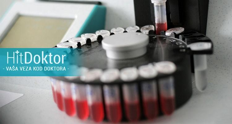 biohemijska analiza krvi, biohemijska analiza urina, lin lab, popusti novi sad, hit cena, hitcena.com
