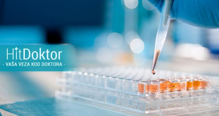 Helicobacter pylori, heliko bakterija test, heliko bakterija, zdravlje popusti