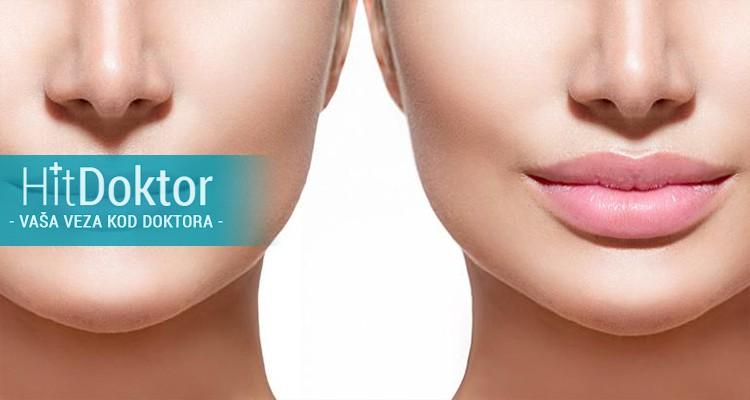popunjavanje usana, pušačkih bora, nazolabijalnih bora,  bora na čelu, hijaluron, podmlađivanje i konturiranje lica